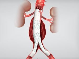 Аортни-интервенции